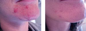 IPL acne reduction