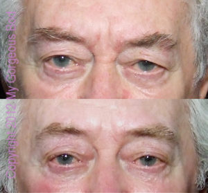 Micorcurrent: 75 year old