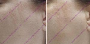 ba-dermaplaning-skin-shaving