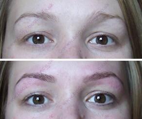 ba-eyebrows-eyelashes