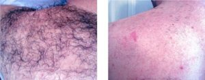 IPL back hair removal