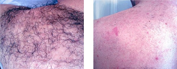 IPL back hair removal