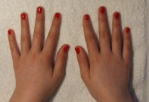 nail-biter-10-04-09b