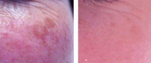 IPL pigmentation reduction