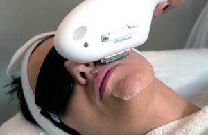 Skinfirst IPL facial treatment